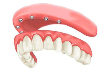 Protocolos com  Implantes Dentários