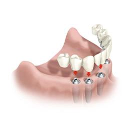 Implante Dentário - Siga Ortodontia e Implantes Dentários - Brasília - DF