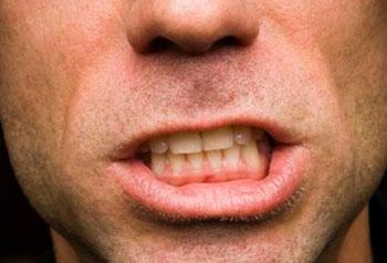 bruxismo-apertamento-dos-dentes