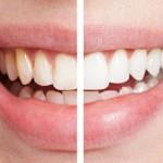 clareamento-dentes-brancos-dentes-amarelados-tratamento