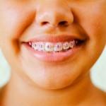 Malocluses - Siga Odontologia e Implantes Dentários