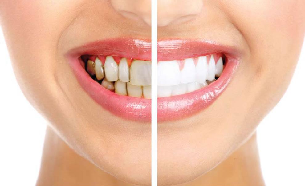 Como funciona o processo de clareamento dos dentes?