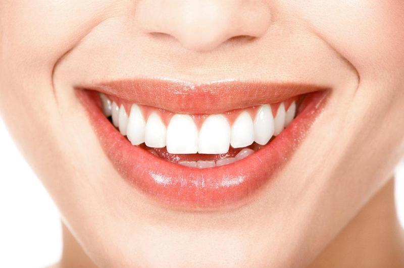 Dentes perfeitos depois do aparelho