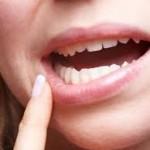 Como tratar a Erosão dentária?