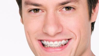 Por quanto tempo preciso usar meu aparelho dentário?
