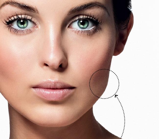Bichectomia a escolha perfeita para um rosto harmonioso