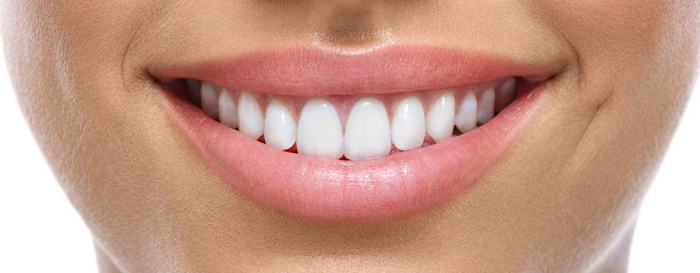 Principais causas das manchas nos dentes