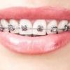 O que é Aparelho Dentário Fixo