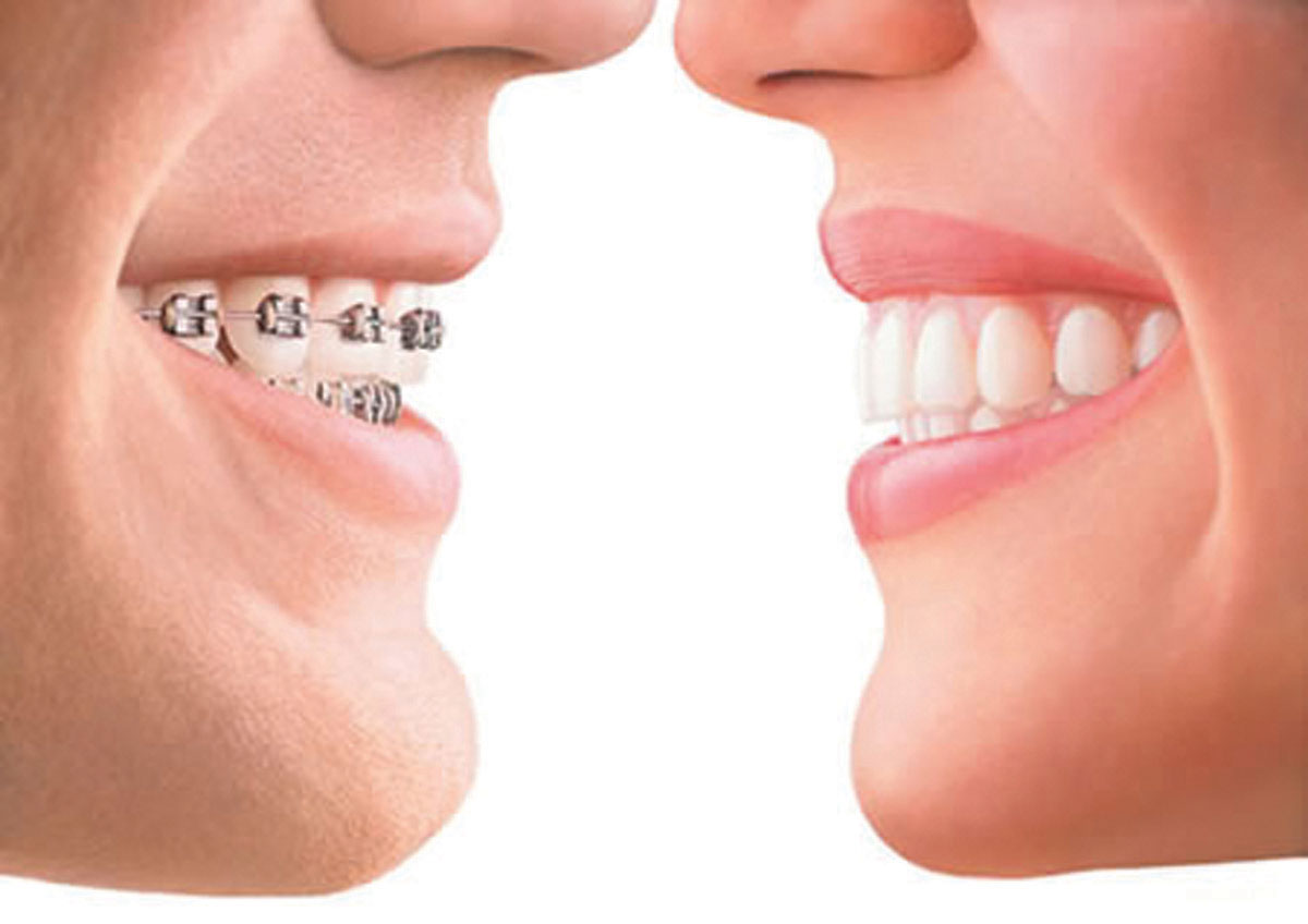 Procedimento para tratamento ortodontico
