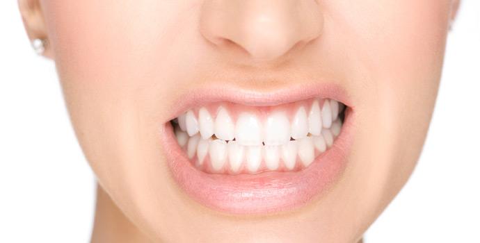 Como o clareamento dental ajuda na sua saúde bucal?