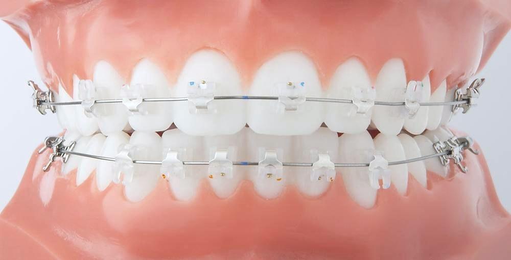 Quais as vantagens do aparelho dentário?