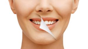 Quais são os tipos de clareamento dental?