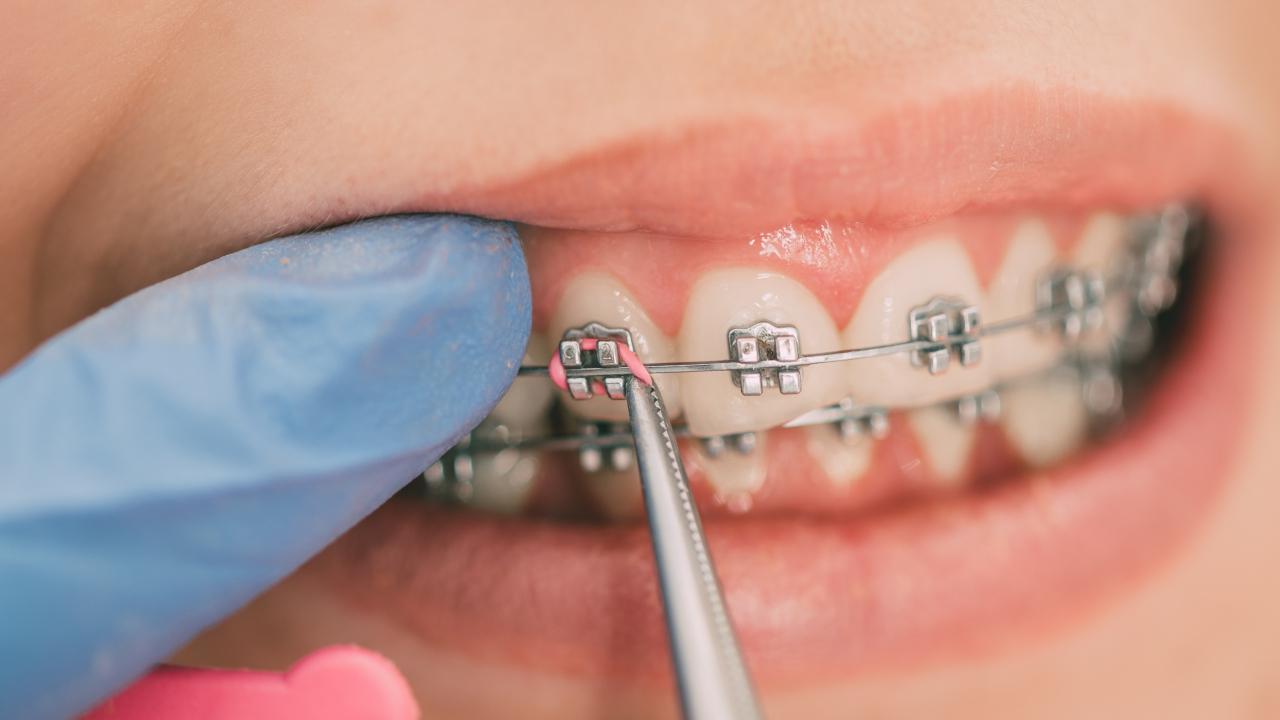 O que você precisa saber sobre Ortodontia
