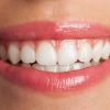 Como funciona o clareamento dental caseiro e quais os riscos?