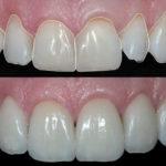 O que é odontologia estética?