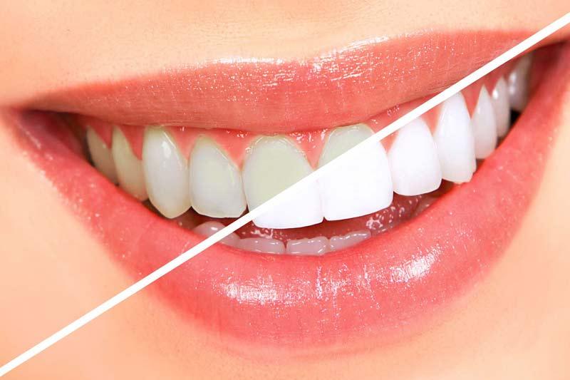 Quais os benefícios do clareamento dental?