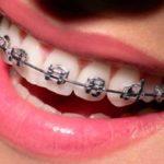 Em quais casos são necessários o uso de aparelho ortodôntico?