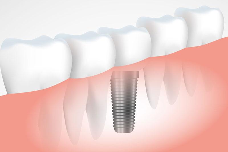 Implante Dentário - Brasília DF