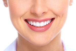 Implante dentário - vantagens