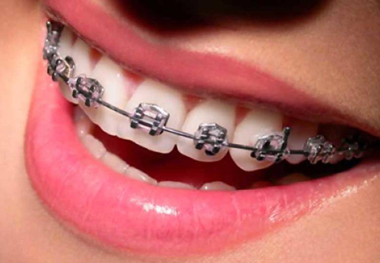 aparelho-ortodontico-siga-odontologia