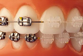 brackets-safira-aparelho-ortodontico