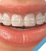 ortodontia em Brasília - aparelho dental