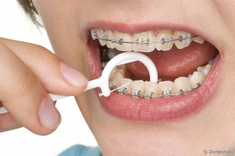 ortodontia limpeza