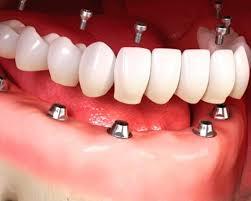 342045328 Como é feita a higiene do protocolo dentário - Implantes dentários e ...