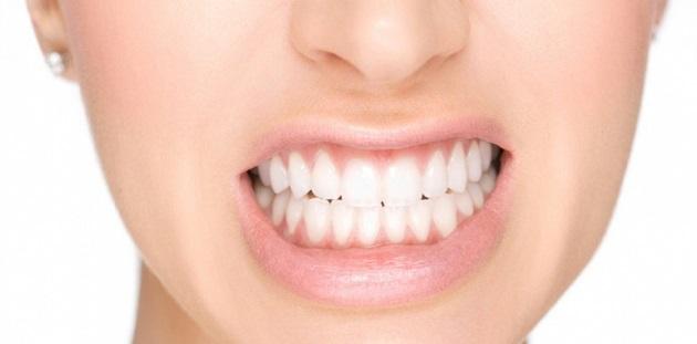 Prótese dentaria - Solução para Bruxismo-Ranger-dos-Dentes-1030x510