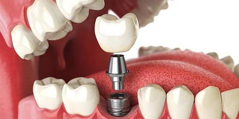 Implante Dentário DF